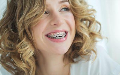 Los beneficios de la ortodoncia
