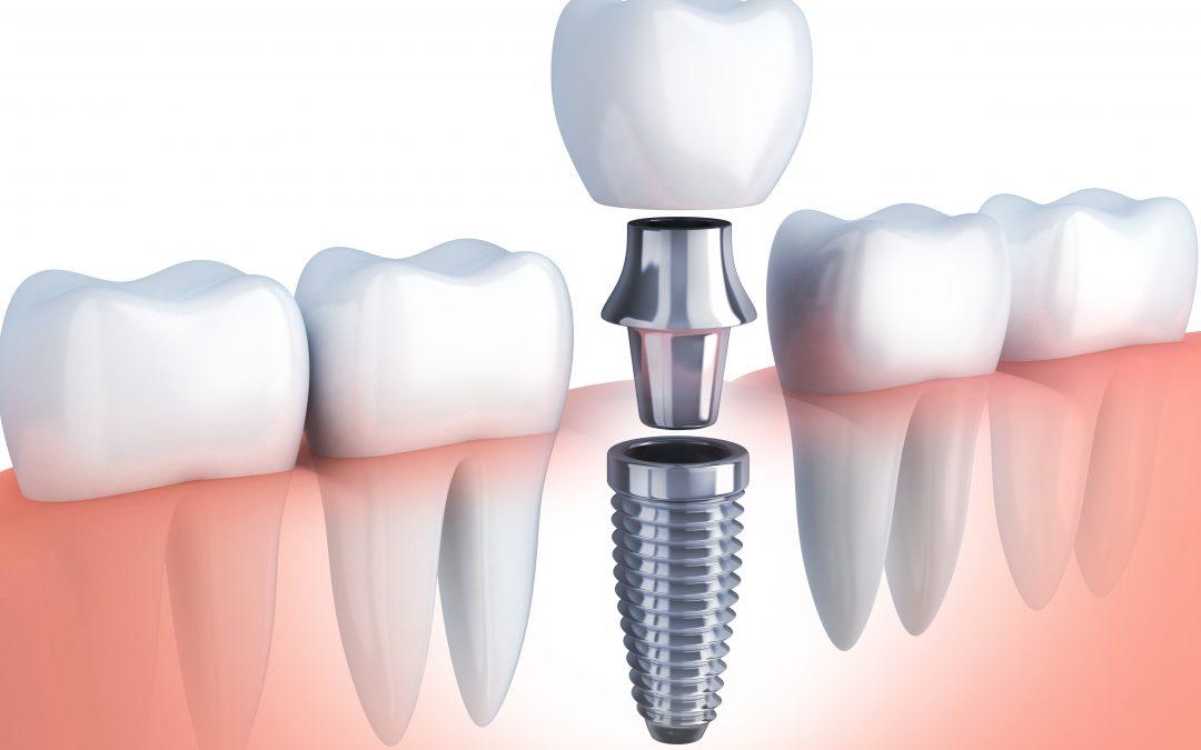 Las ventajas reales de los Implantes Dentales